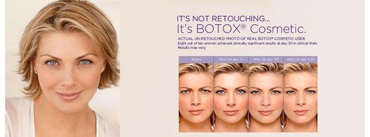 botox injection in chennai