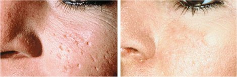 acne scar before and after in chennai