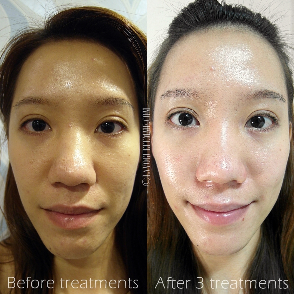 skin lightening laser treatment
