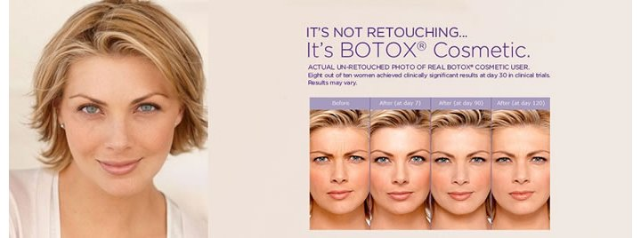 Botox injections for wrinkle reduction