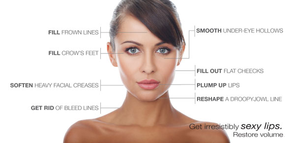 sites on face where dermal fillers can be injected