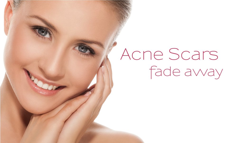 acne scar removal treatment in chennai